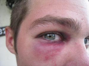 Несколько месяцев не проходит синяк под глазом