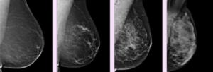 Фиброзно кистозная мастопатия инволютивных молочных желез