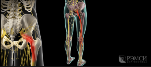Опухоль седалищного нерва