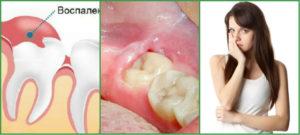 Опухла десна около зуба при беременности