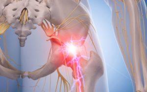 Невралгия седалищного нерва?