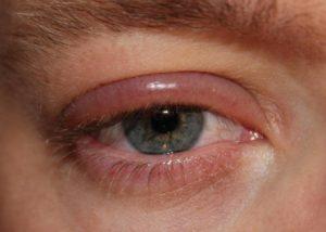 Опухли верхние веки при аллергии