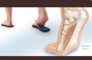 Не работает нога