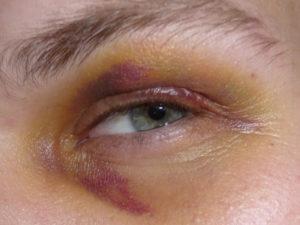 Гематома над глазом