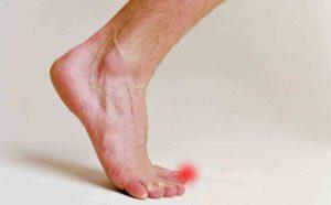 Онемение пальцев ноги
