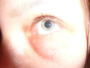 Опухоль гнойная под глазом