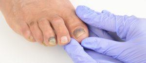 Онемение кожи возле ногтя правой ноги