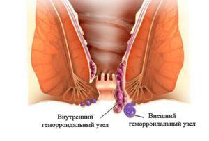 Геморроидальный узел на 26 неделе беременности