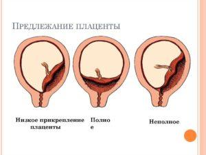 Низкое предлежание плаценты