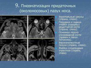 Нерезкое нарушение пневматизации ячеек основной пазухи