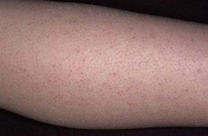 Обширная сыпь на руках и ногах