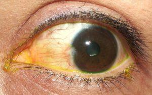 Гной на белке глаза