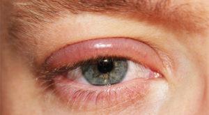 Глаз: покраснение, опухает, слезится, болит