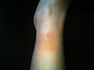 Не проходит темное пятно на ноге