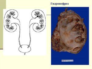 Гидронефроз и прививки