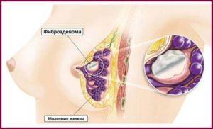 Фиброаденома при грудном вскармливании