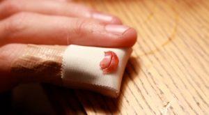 Глубокий порез пальца на изгибе фаланга