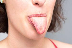 Облезает язык