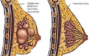 Фиброзно-кистозная мастопатия (единичная киста)
