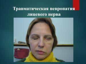 Неврит лицевого нерва у беременной