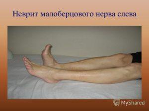 Онемела голень, неврит малоберцового нерва