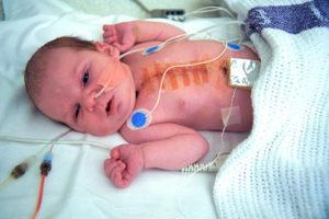 Операция на сердце у ребенка