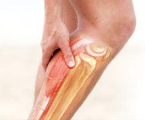 Неприятные ощущения в икре левой ноги вплоть до ступни