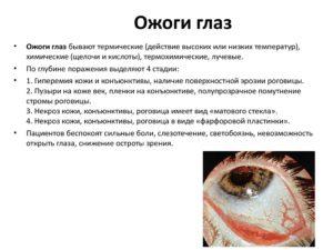 Ожог ли глаз от уфо