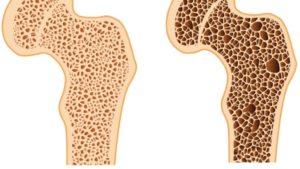 Остеопороз и беременность