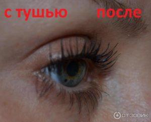 Нижние ресницы растут внутрь глаза