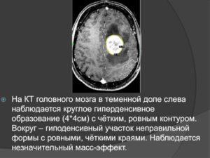 Гиподенсное образование в мозге
