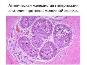 Фиброзно - кистозная гиперплазия