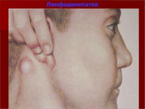 Генерализованная лимфаденопатия + субфебрилитет + эозинофилия