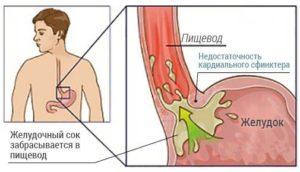 Недостаточность кардии и поверхностный гастрит