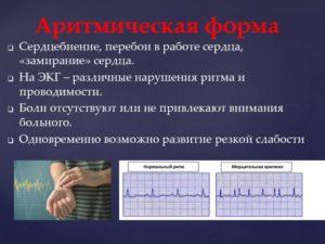 Перебои в работе сердца, пульс перебоями