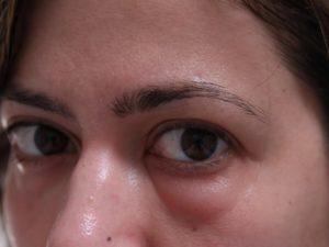 Отек в области глаз и переносицы, реакция на лекарственные препараты