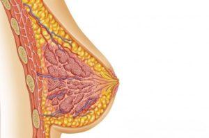 Гнойная киста молочной железы
