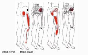 Ноющая тянущая ломота в левой ноге от ягодицы до пятки