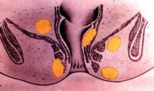 Гной после операции острый парапроктит