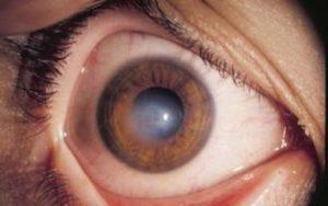 Ожог глаз УФ
