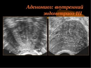 Диагноз эндометриоз по УЗИ