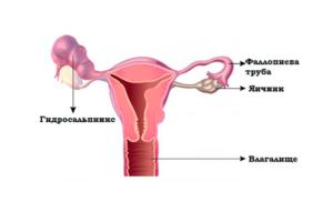 Гидросальпинкс беременность