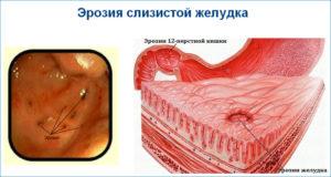 Операция на колене, эрозия желудка