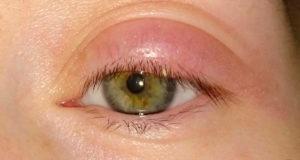 Опухло 2 глаза