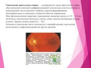 Гипоплазия дисков зрительного нерва