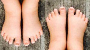 Не проходят отеки рук после родов