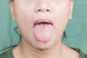 Опухший язык