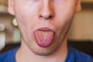 Опух язык, болит сердце