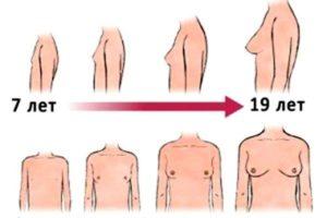 Не сформированная форма в груди в 20 лет