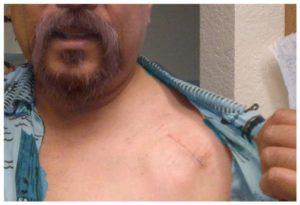 Отторжение кардиостимулятора